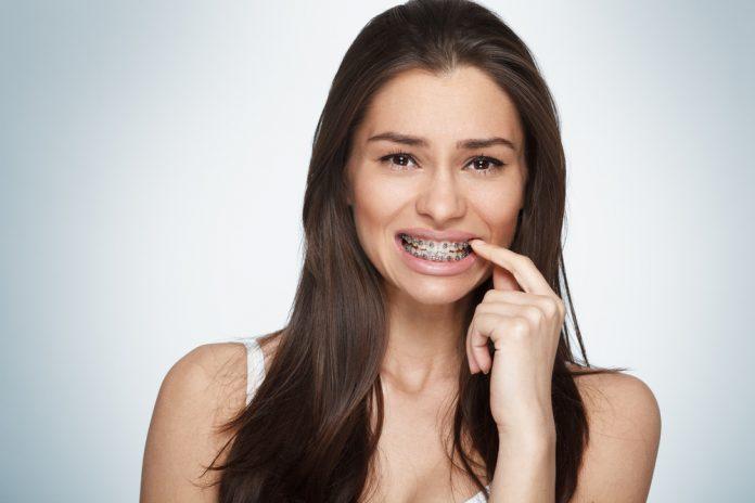 L'apparecchio denti si può mettere anche da adulti
